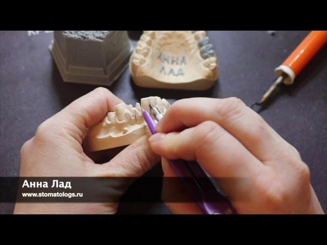 Видео курс по скелетному восковому моделированию Трейлер