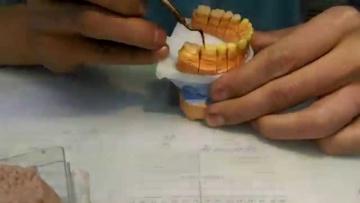 Wax Up Моделирование зубов воском 1